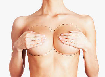find breast surgery essay Briefing papers briefing paper it is advisable to delay surgery until breast growth ceases in order the american society of plastic surgeons is the largest.